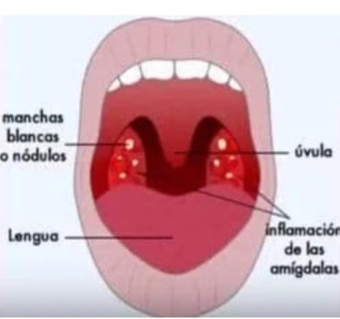 TODO LO QUE NECESITAS SABER SOBRE LA AMIGDALITIS (Anginas) – No ...